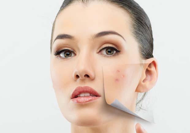 Mitos e verdades sobre a acne!