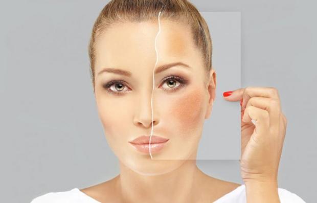 Manchas no rosto – o que fazer?