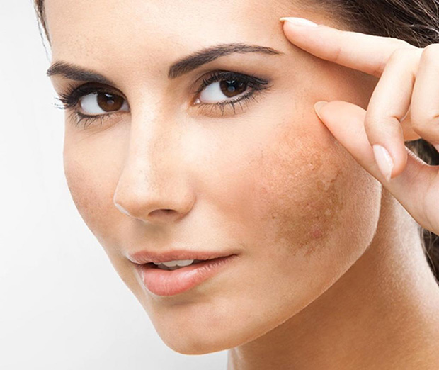 Melasma: entenda as causas e como prevenir essas manchas na pele!